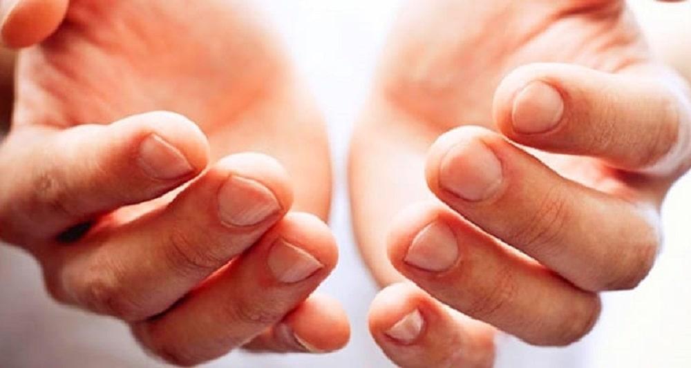 scabies hands